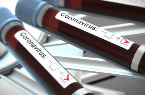 More Than 30 Nurses And Midwives Test Positive For COVID-19
