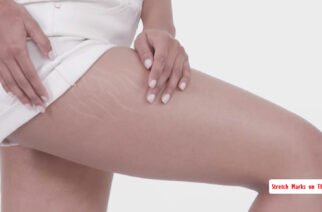 How to Remove and Prevent Stretch Marks on Thighs